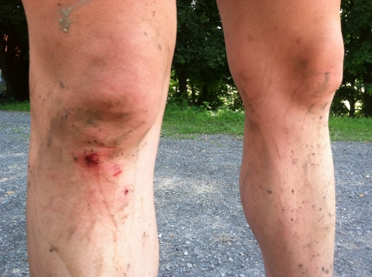 Not a real mountain bike ride unless there is blood.